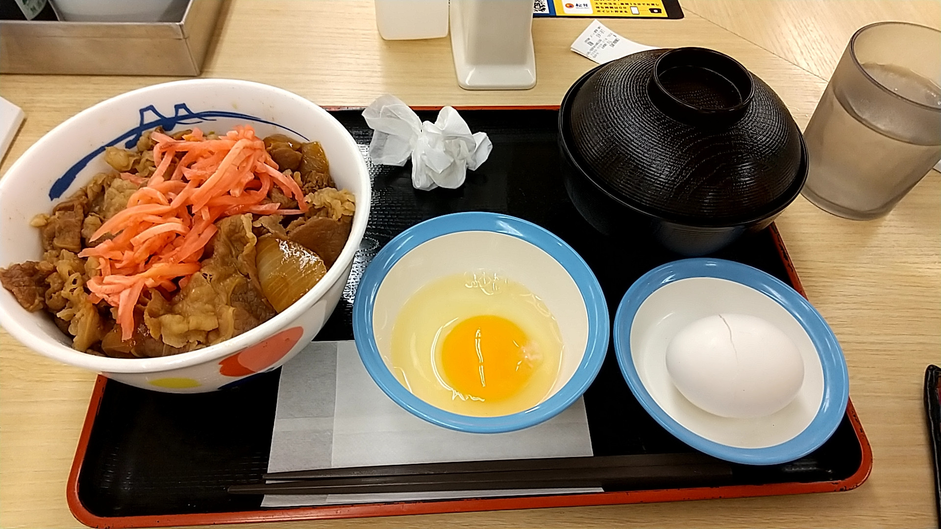 【速報】入院中ワッイ、病院を抜け出して松屋で牛丼を食べてしまう
